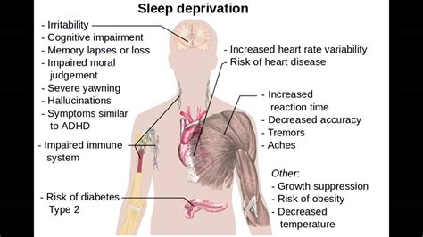 Effects of Sleep Deprivation - YouTube