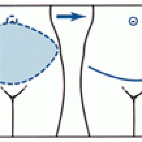 drawing_tummy_tuck_incisions_excess_skin_removal_vs_full