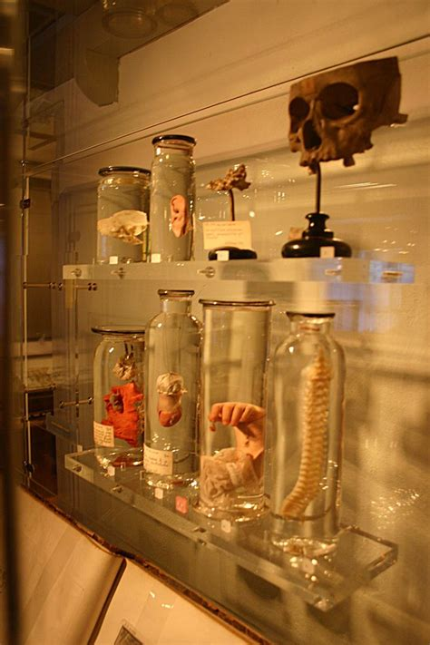 1000+ images about Preserved Human Specimens on Pinterest