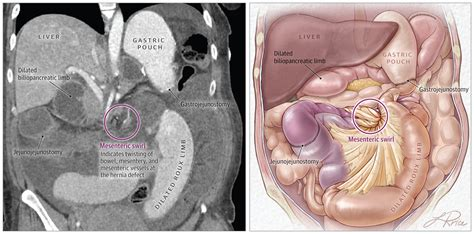Abdominal Pain and Vomiting in a Pregnant Woman Who Has