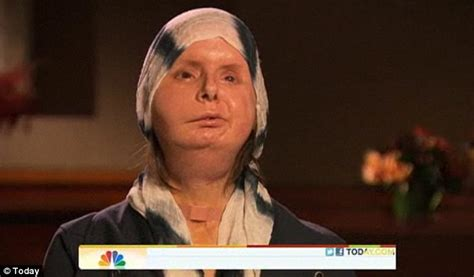 Charla Nash's new face: Chimp attack victim shows off