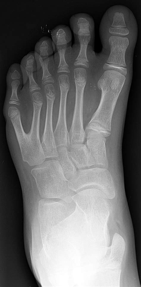 Polydactyly - wikidoc