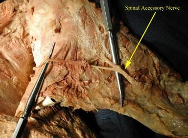 Spinal Lab Part 2 - Anatomy 504 with Jawaid at Cleveland