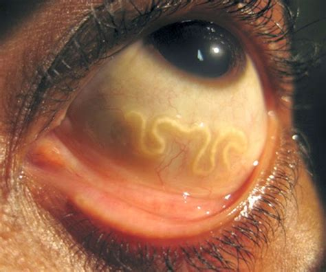 10 HORRIFYING PARASITES THAT HAVE MIGHT LIVE INSIDE OF YOU