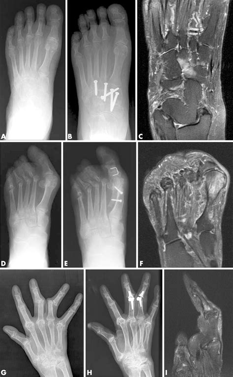 High-grade MRI bone oedema is common within the surgical