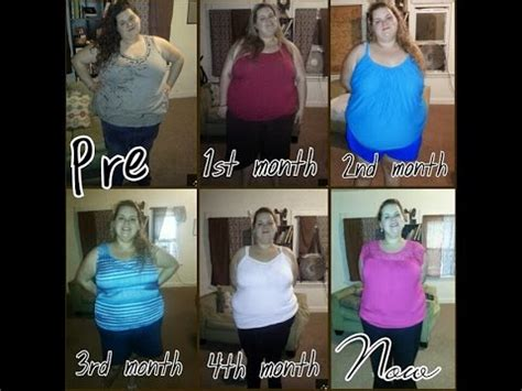 6 Months Post-Op Gastric Bypass RNY 120lbs lost PLATEAU