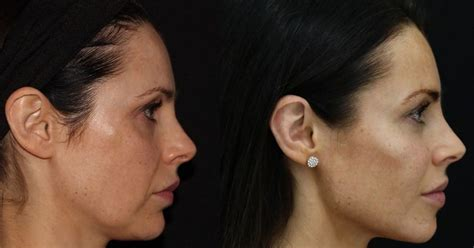 'Facetune' facial fillers treatment promises an instantly