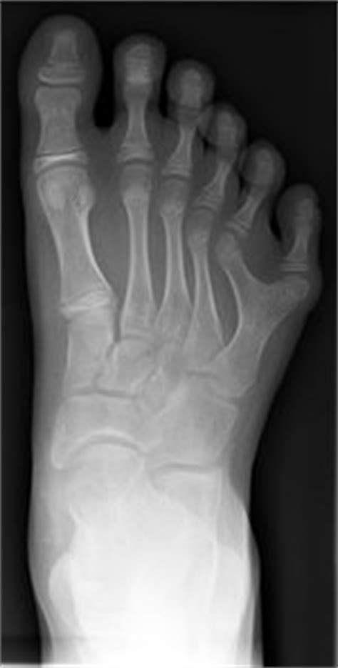 Polydactyly: The newborn foot at The Medical Dictionary